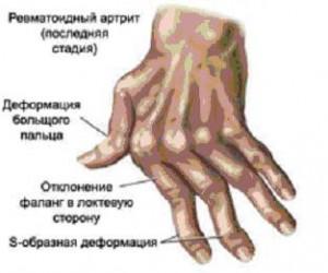Оперативное лечение грыжи позвоночник
